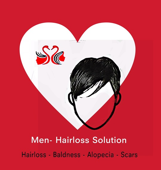 04. Men-Hairloss Solution.HC