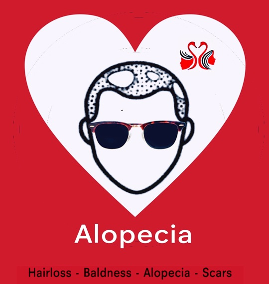 08. Alopecia.HC