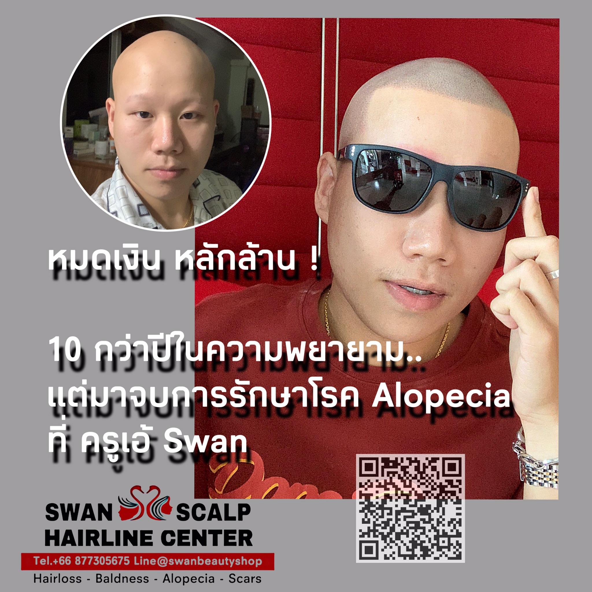 สักสกินเฮดรักษาโรค Alopecia